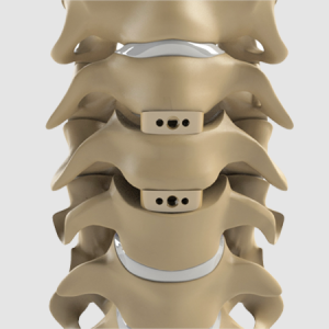 Largo peek cervical interbody cages